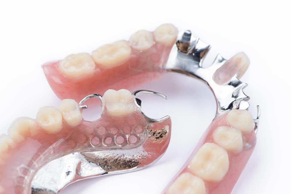 احد انواع تركيبات الاسنان