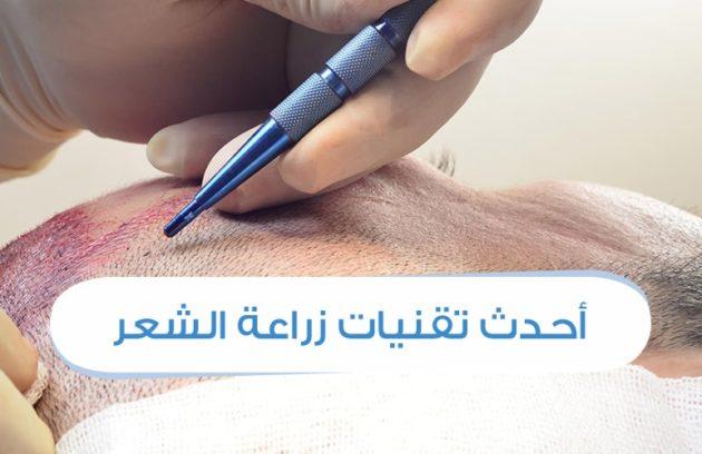 احدث تقنيات زراعة الشعر