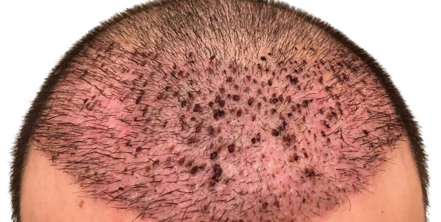 الاثار الجانبية لزراعة الشعر