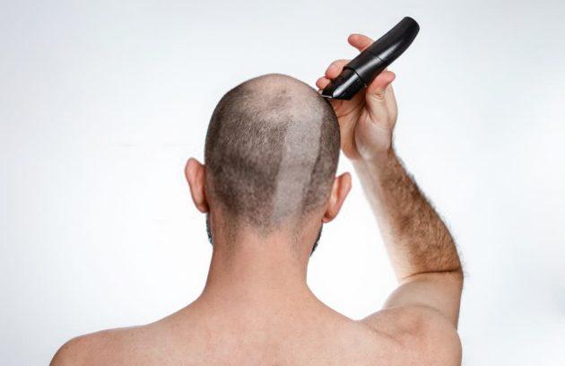 الحلاقة بعد زراعة الشعر