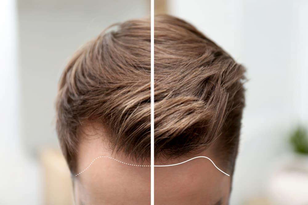 المرشحون لزراعة الشعر
