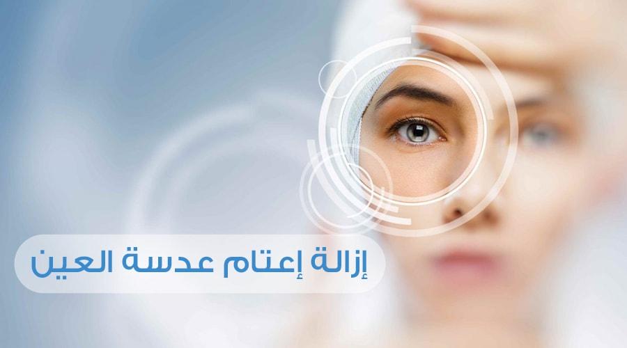 2d66152c2 المياة البيضاء: عمليات إزالة إعتام عدسة العين - تركي ويز