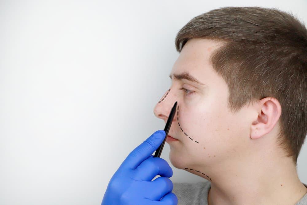 تحديد الملامح قبل عملية تجميل الانف