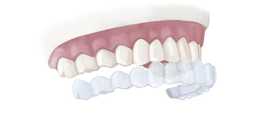 تركيب الفينير علي الاسنان