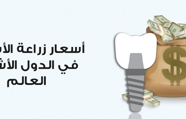 تكلفة زراعة الاسنان