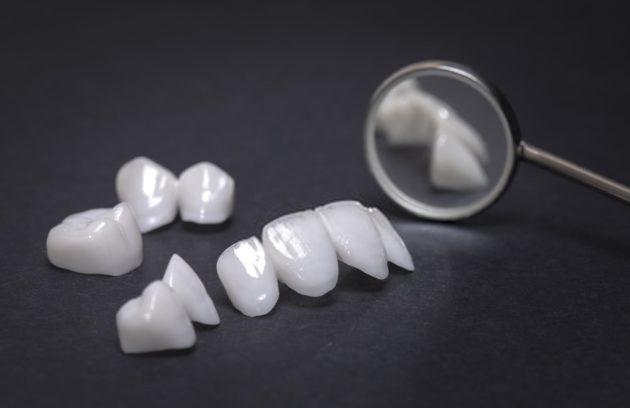 تلبيس الاسنان في تركيا
