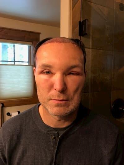 تورم الوجه بعد زراعة الشعر