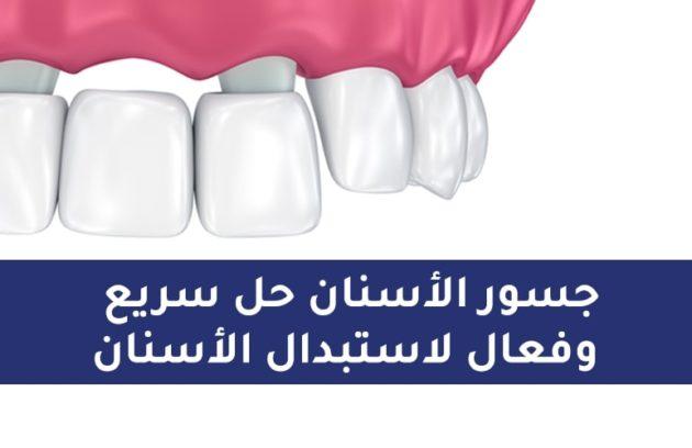 جسور الاسنان