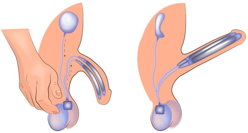 الدعامة الذكرية القابلة للنفخ التي تستخدم في علاج ضعف الانتصاب في تركيا