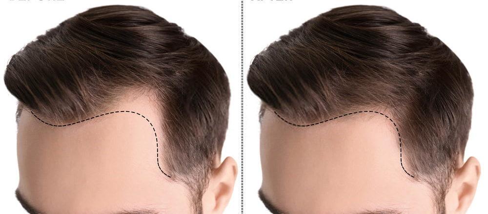 تكلفة زراعة الشعر في تركيا 2020 | تقنيات ومخاطر العملية - تركي ويز