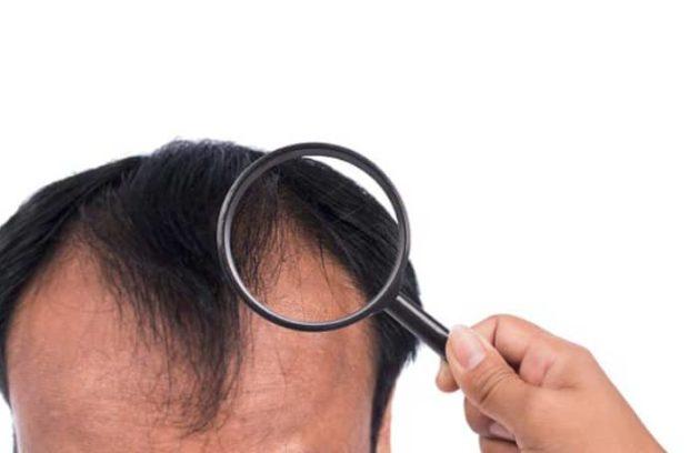 شروط زراعة الشعر