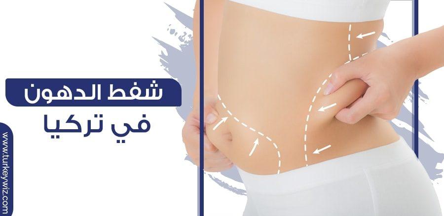 شفط الدهون في تركيا