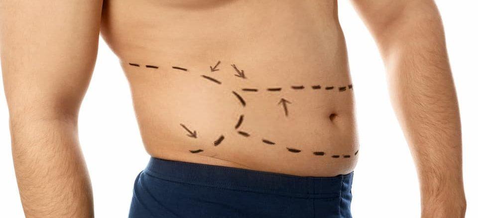 عملية شفط الدهون التكلفة والإجراء ومناطق العلاج تركي ويز