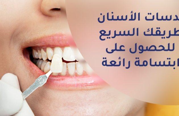 عدسات الاسنان