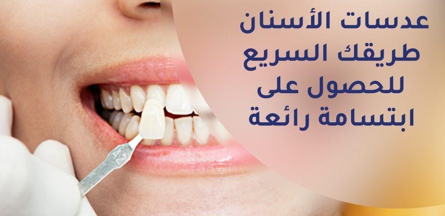 عدسات الأسنان طريقك السريع للحصول على ابتسامة رائعة تركي ويز