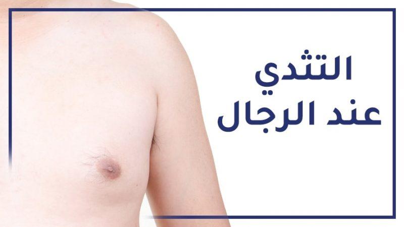 علاج التثدي عند الرجال في تركيا