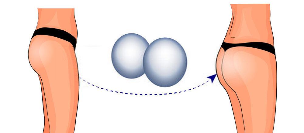 عملية تكبير الأرداف بالسيليكون