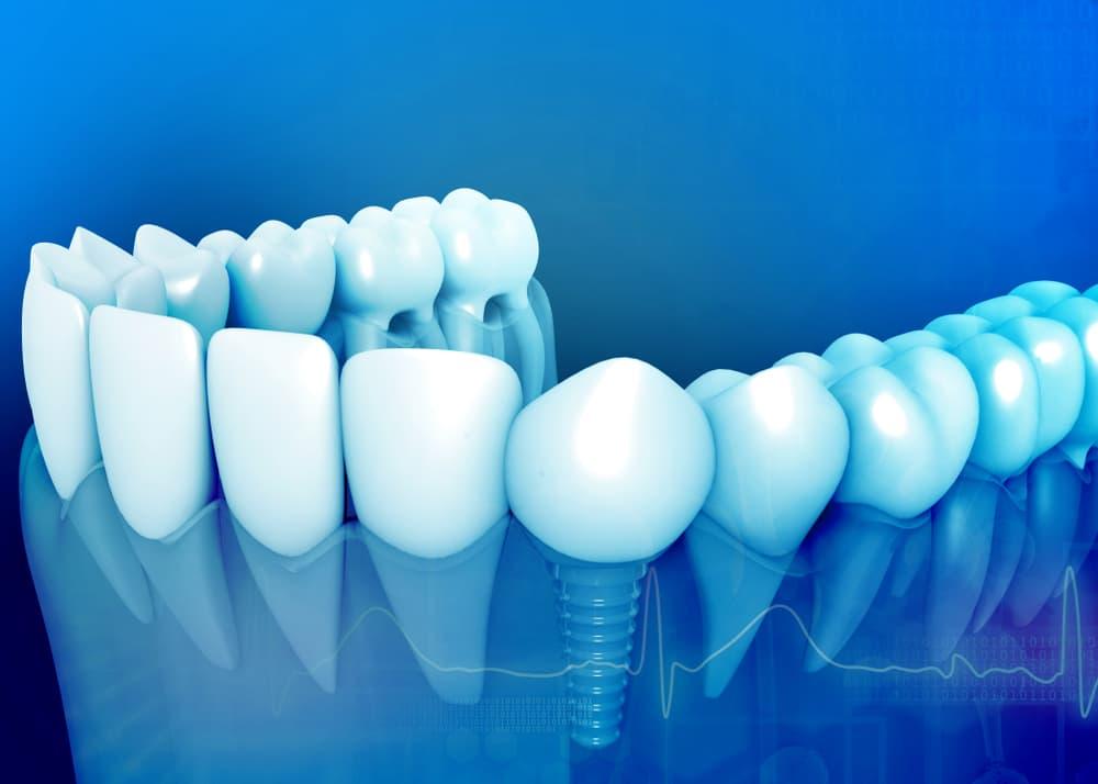 غرس الاسنان