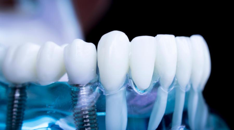 صورة توضح عملية غرس الأسنان