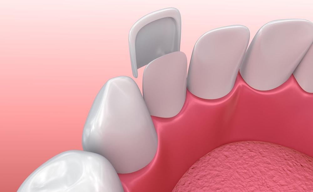 فنير الاسنان
