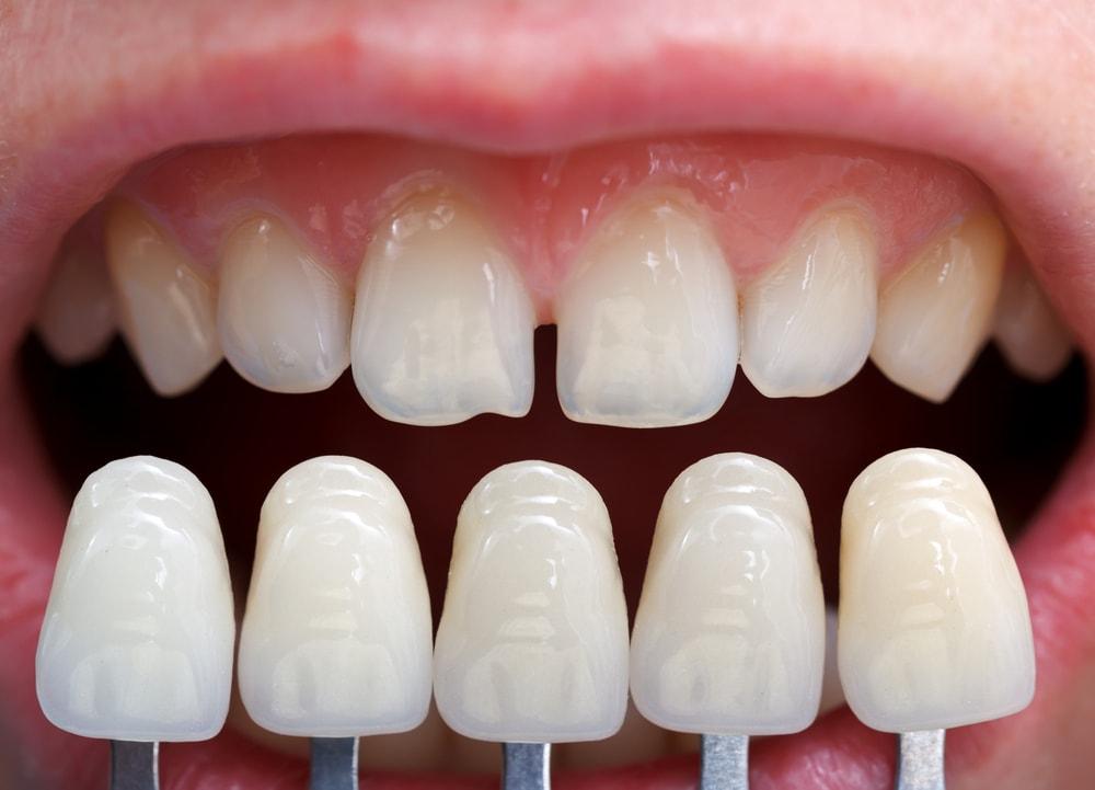 فينير الأسنان في تركيا
