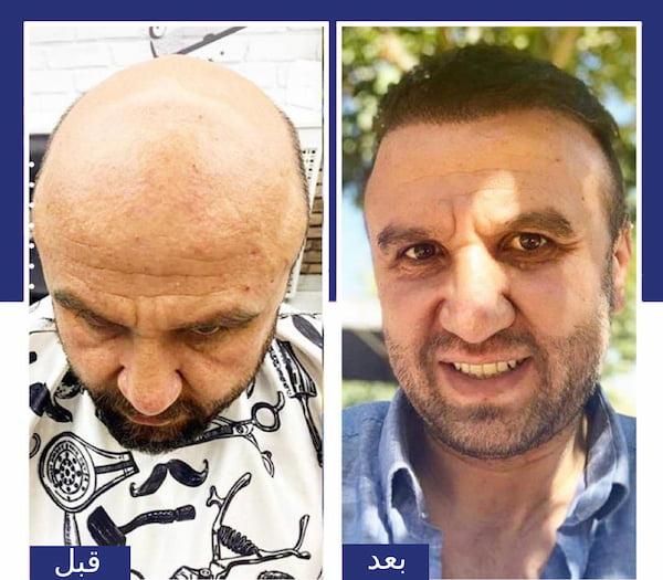 قبل وبعد زراعة الشعر في تركيا