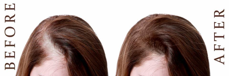 قبل وبعد زراعة الشعر للنساء