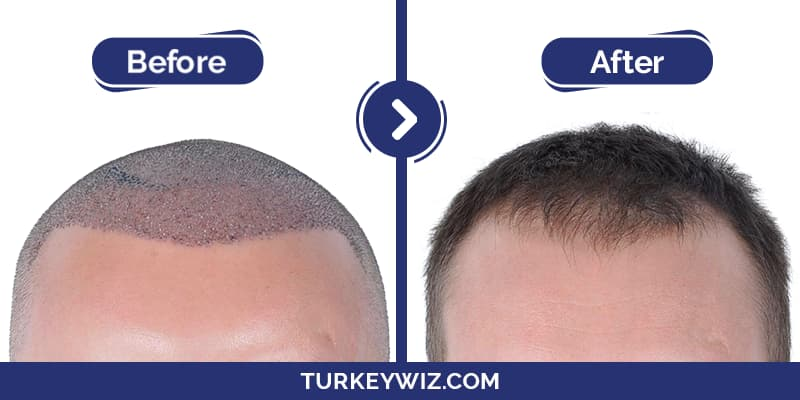 قبل وبعد زرع الشعر