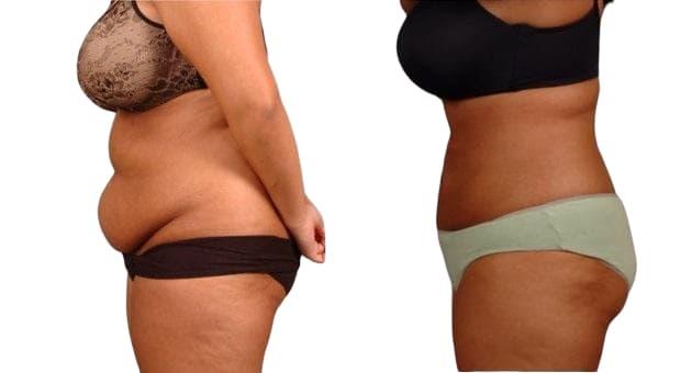 شفط الدهون بالفيزر التكلفة والمميزات والعيوب ونتائج العملية تركي ويز
