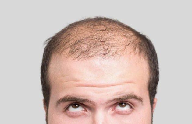 متي تظهر نتائج زراعة الشعر