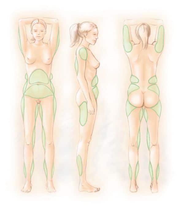 مناطق شفط الدهون