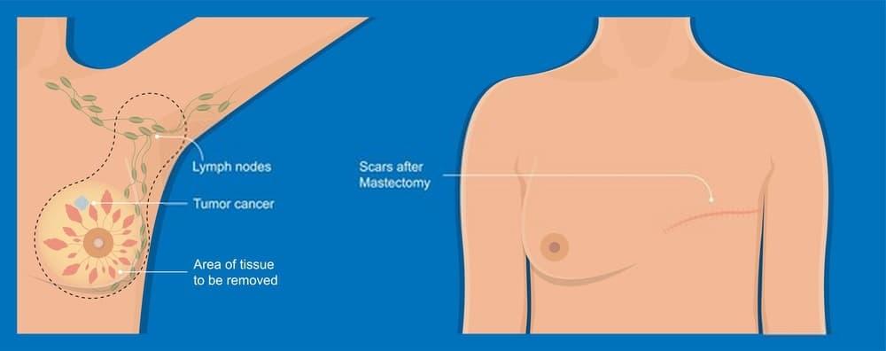 إعادة بناء الثدي
