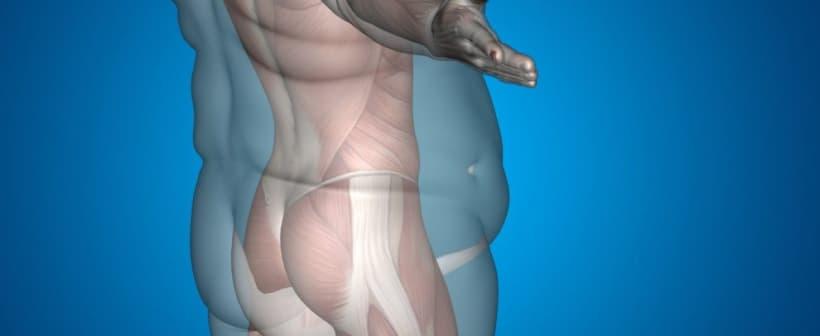 عملية نحت الجسم الكامل