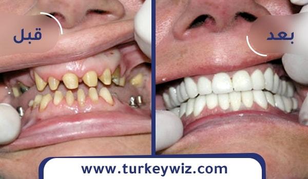 تجربتي لزراعة الاسنان في تركيا