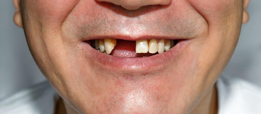 الاسنان المفقودة