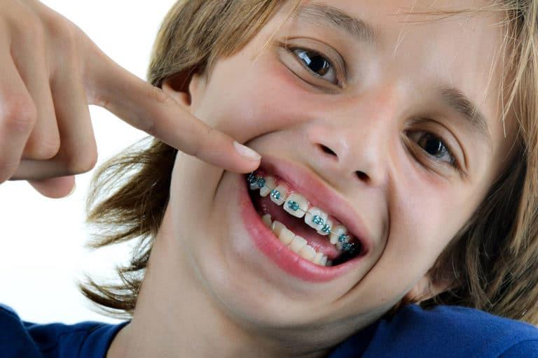 تقويم الأسنان في تركيا الأنواع والإجراءات والأسعار تركي ويز