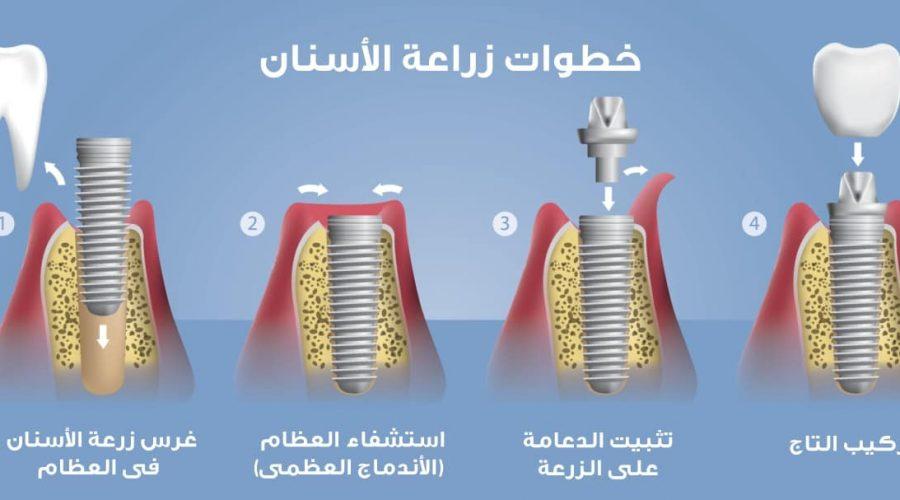 رسم توضيحي لخطوات زراعة الأسنان