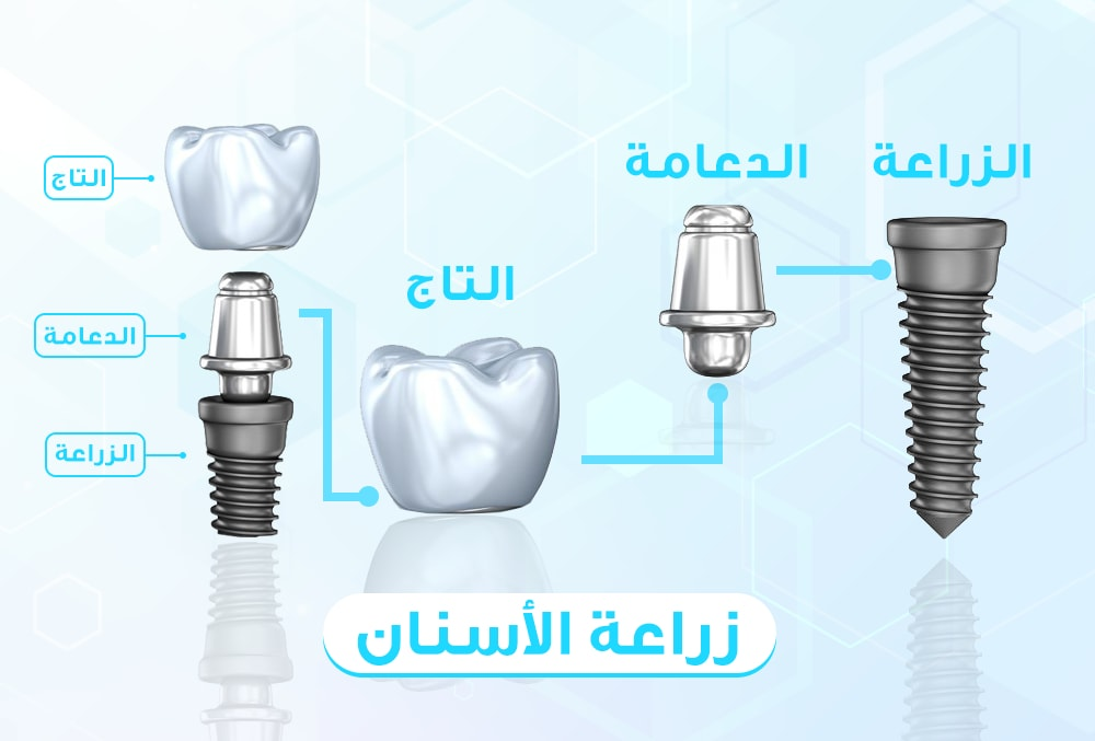 مكونات زراعة الاسنان