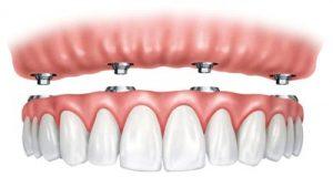 تثبيت أطقم الأسنان