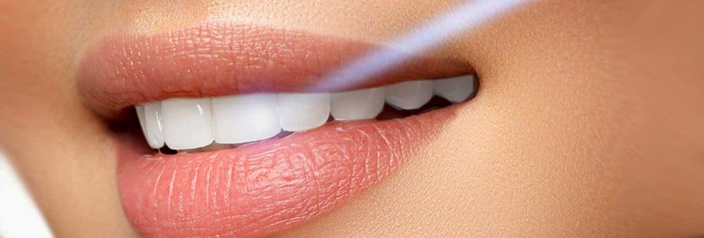 طرق تبييض الأسنان في تركيا