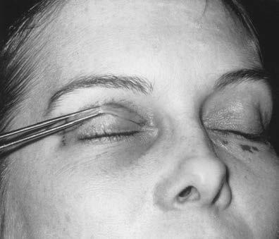 الإمساك بالجلد بواسطة ملقط الجراحة
