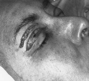 العضلة الدائرية للعين مما يتطلب إزالة كبيرة من جلد الجفن