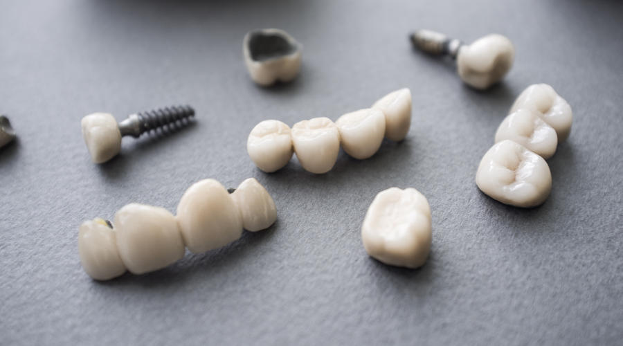 أنواع جسور الأسنان في تركيا