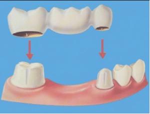 جسور الأسنان الثابتة