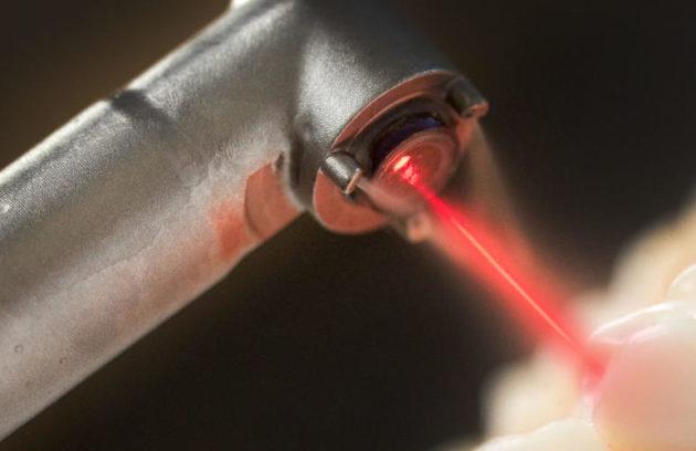 إجراء جراحة زراعة الأسنان بإستخدام بالليزر