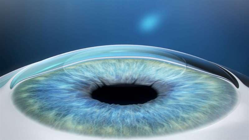 نتيجة عملية الفيمتو سمايل بتصحيح الخطأ الإنكساري في العين