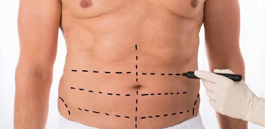 نصائح بعد عملية شد البطن