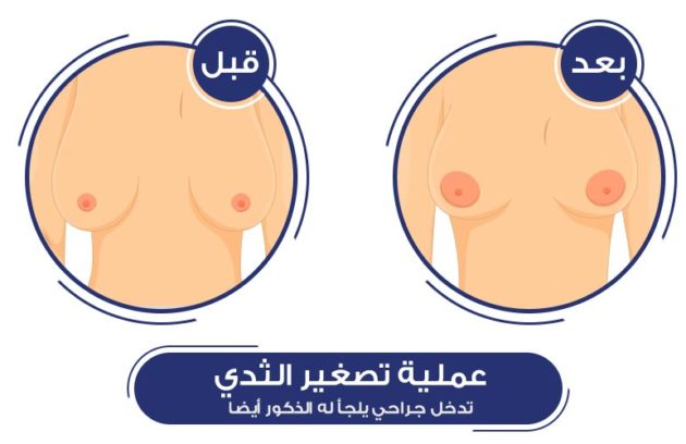 عملية تصغير الصدر قد يلجأ لها الرجال أيضا