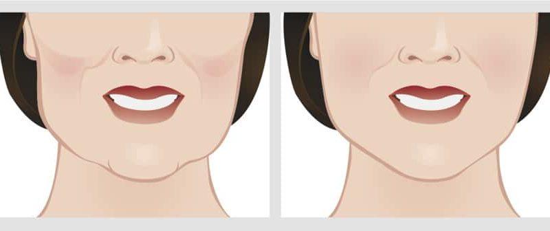 مقارنة الوجه قبل وبعد جراحة تجميل الذقن