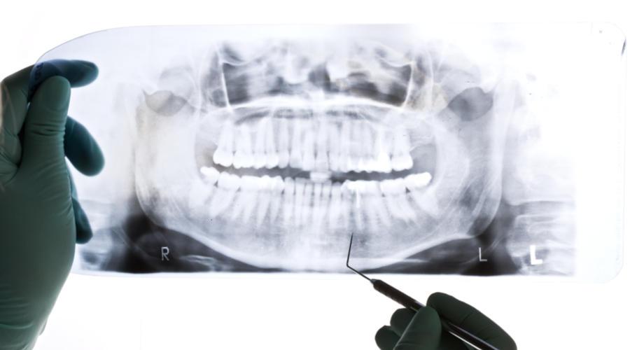 طبيب يفحص الأشعة السينية لمريض قد يحتاج الى زراعة عظام الأسنان